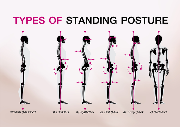 Fit3D Posture Analysis Identifies Problems That Impact Mobility
